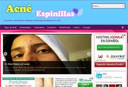 acne-espinillas