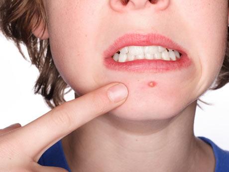 Algunos consejos prácticos para detener el acné y evitar las cicatrices