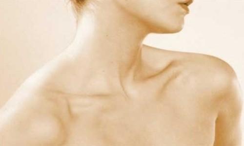 Cirugía en el cuello