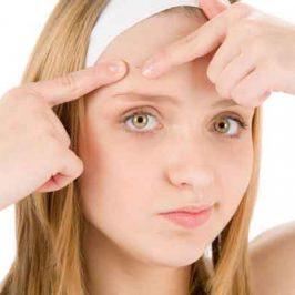 Aclara tus dudas sobre la isotretinoína