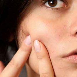 A tener en cuenta para evitar los brotes de acné